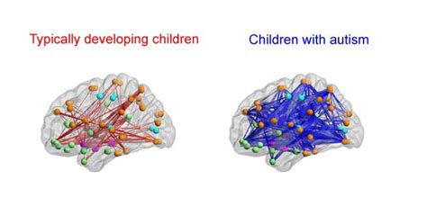Social symptoms in autistic children may be caused by