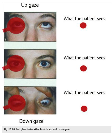 Questions of the Week: Diplopia 2 – Assessment — Neuro